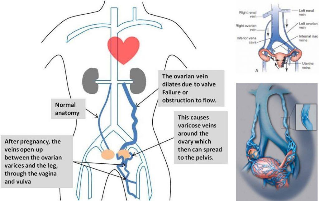 tratamentul adn pelvic varicose varicoză sub ouă