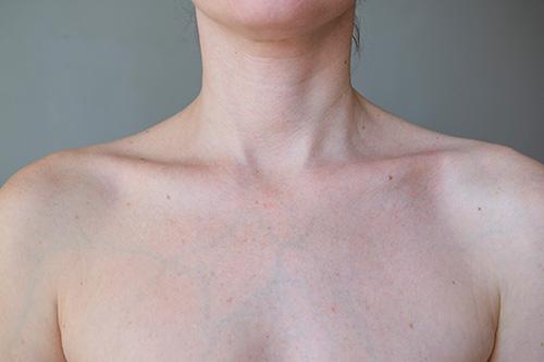 Veins breasts purple on Veins on